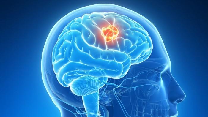 Качественный растровый клипарт с изображением мозга человека.