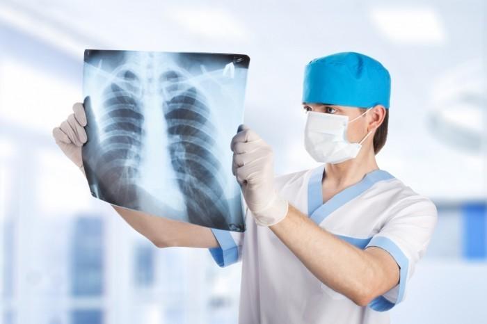 Доктор с маской на лице в руках со снимком рентгена.