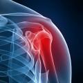 Боль в предплечье - Pain in the forearm