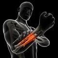Боль в руке - Armache