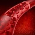 Сосуды с тромбоцитами - Vessels with platelets