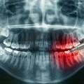 Рентген зубов - Dental xray