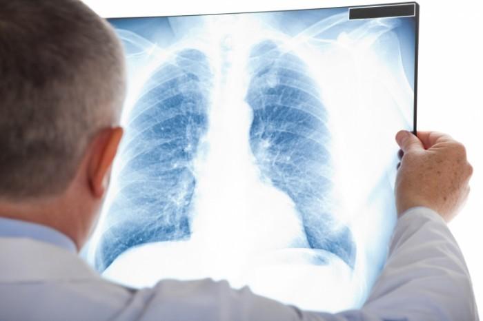 pDocLungXray Dollarphotoclub 54940412 700x466 Мужчина с рентгеном   Man with X rays